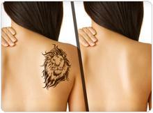 Удаление татуировок лазером